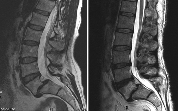 without listhesis Management of symptomatic lumbar spondylolysis without listhesis in adolescent athletes represents a unique challenge for the treating physician.